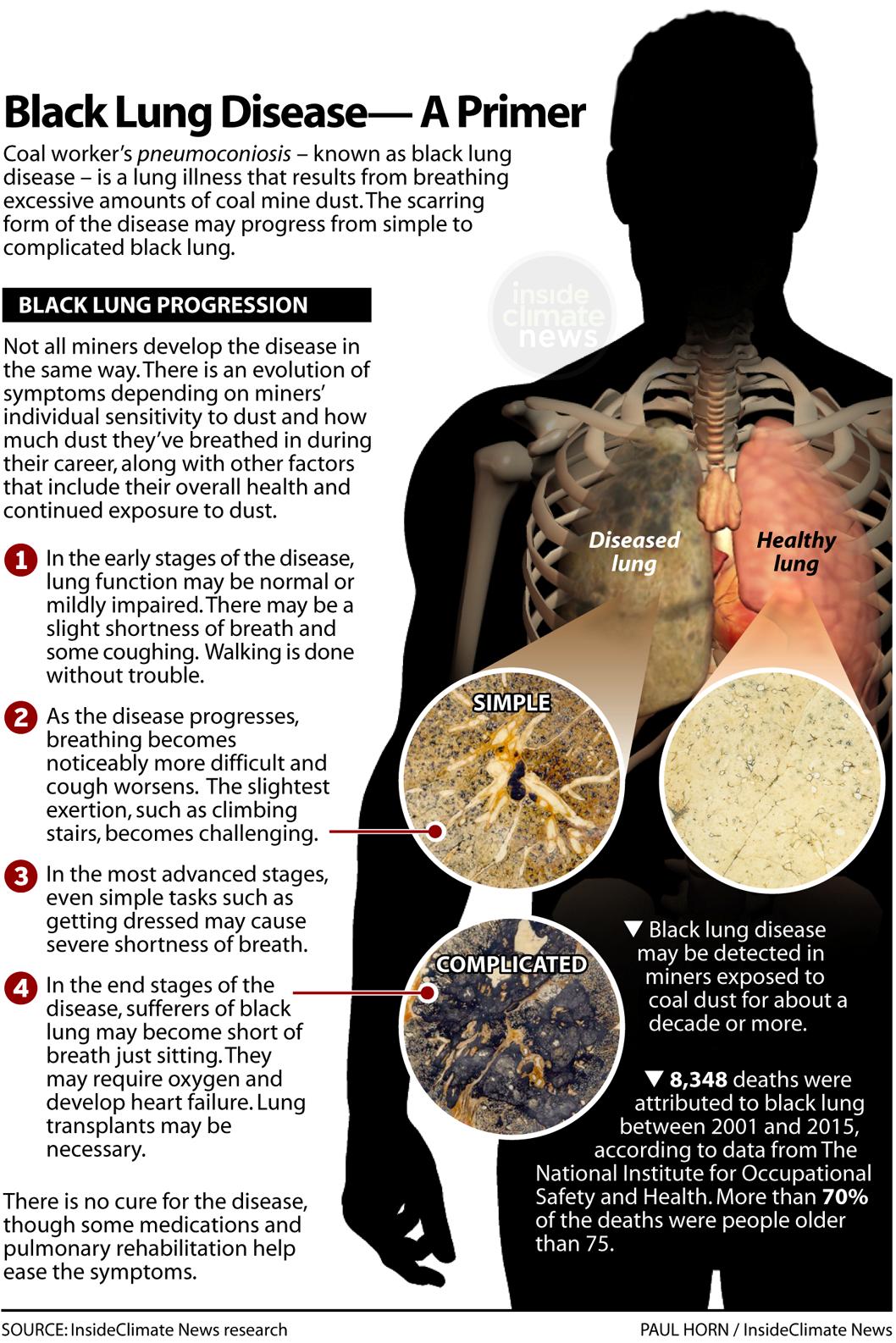 Black Lung Disease: A Primer